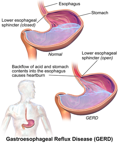 GERD Symptoms and Treatment: Natural Ways To Start Healing
